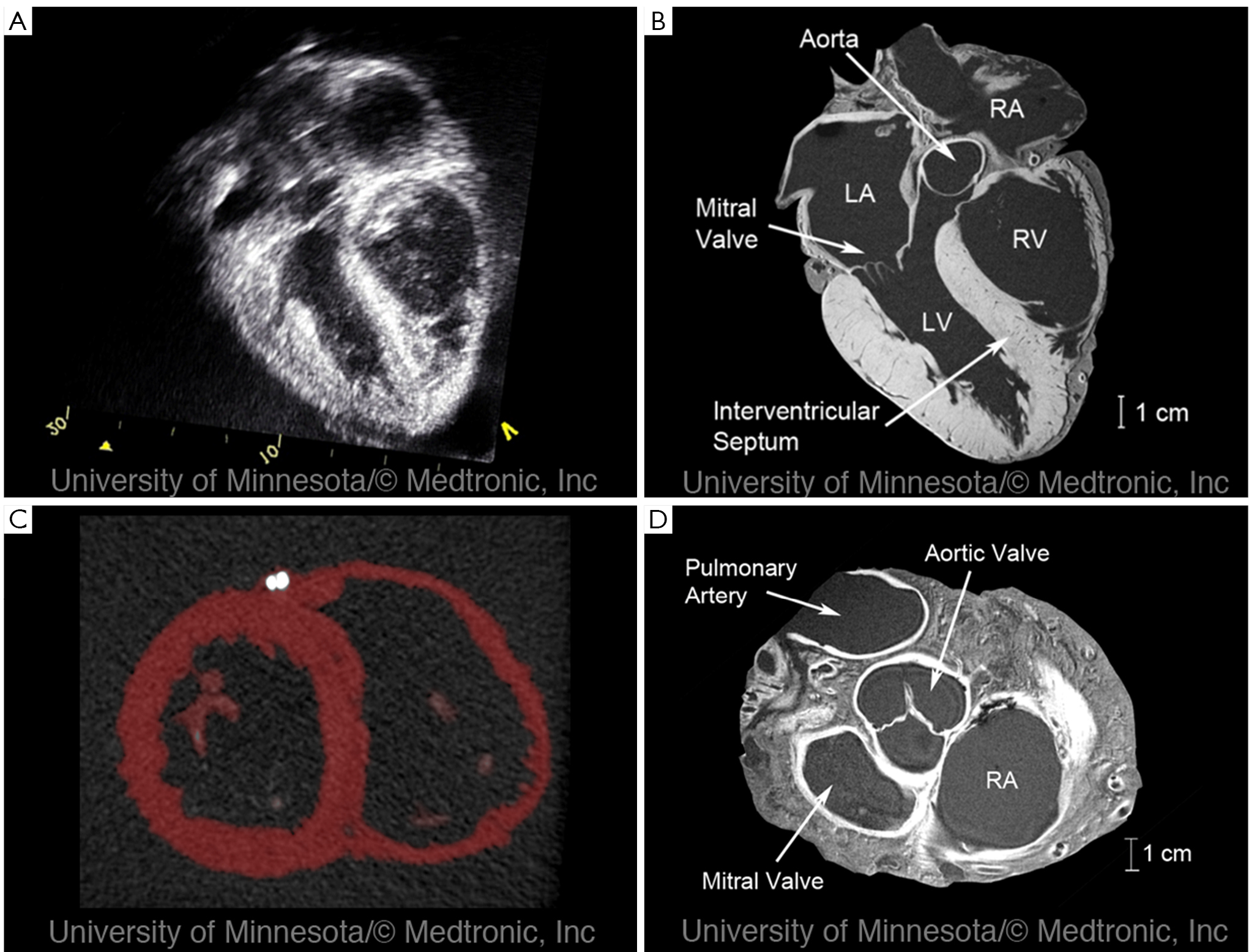 Imaging in the context of replacement heart valve development: Use ...