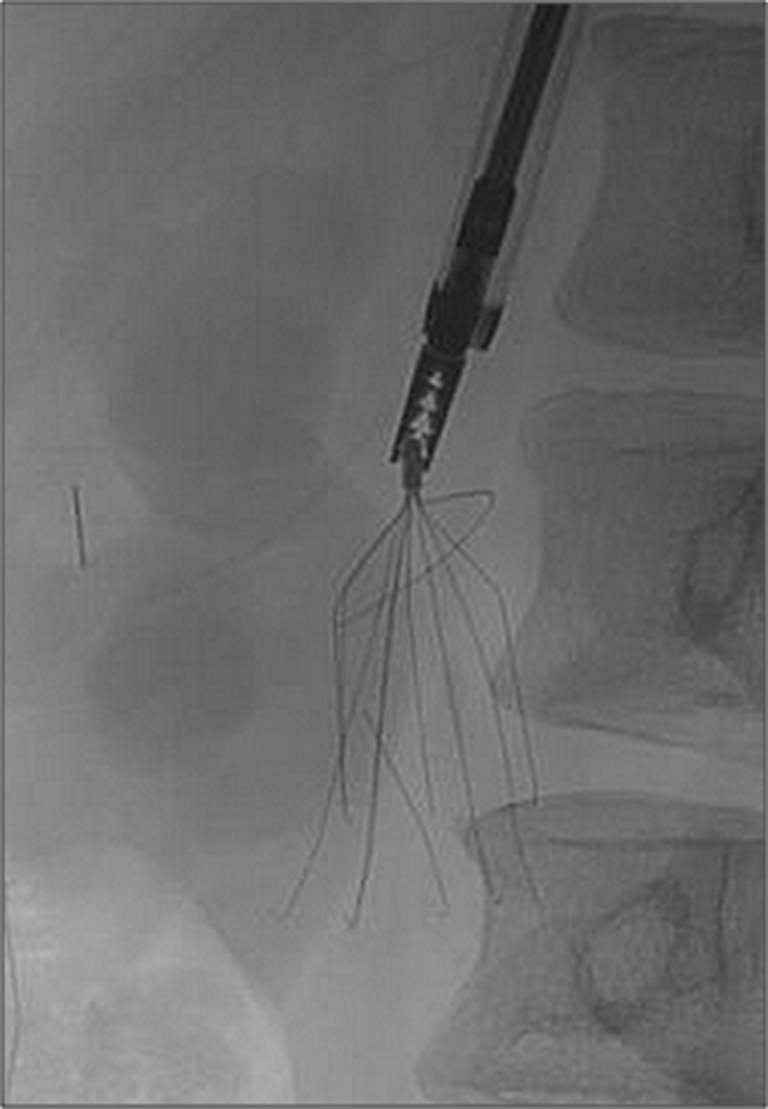 Inferior vena cava filter retrievals, standard and novel