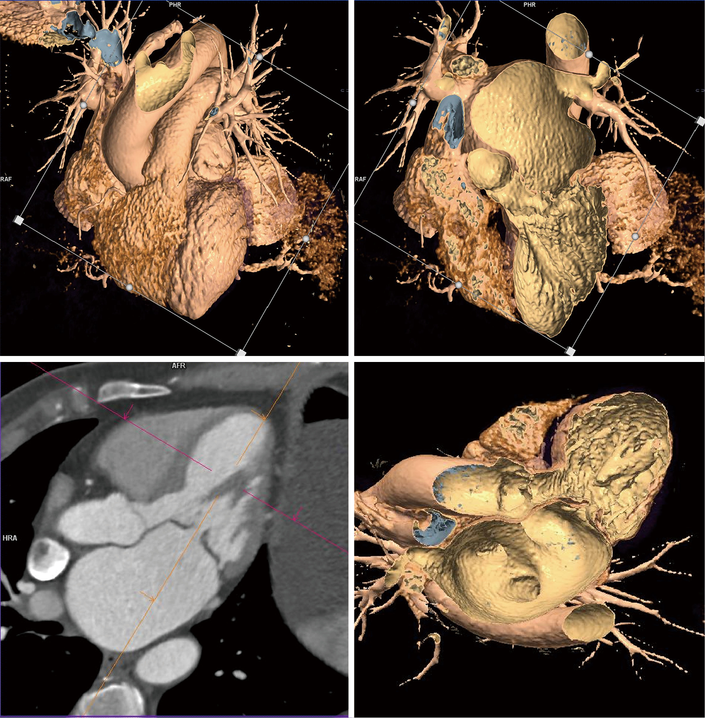 Peri-procedural imaging for transcatheter mitral valve replacement ...